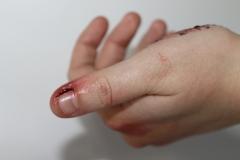 media makeup course assessment 2016 - makeup sfx cuts and blood 3